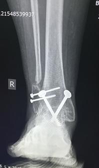 Операцция по замыканию коленного сустава дисплазия тазобедренных суставов у стаффордширских терьеров