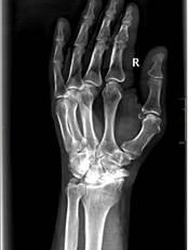 Инвалидность после травмы: виды травм, основания установления группы