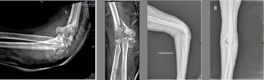 Эндопротезирование локтевого сустава отзывы пациентов тазобедренный сустав реклама работа