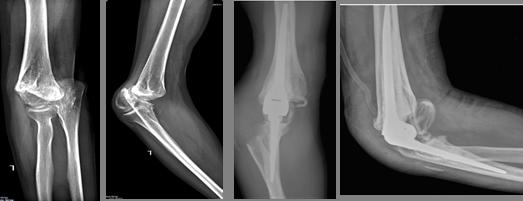 Курган протезирование локтевого сустава ортомолекулярный метод лечения заболевания суставов