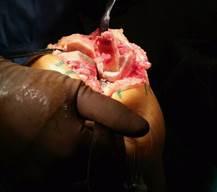 Эндопротезирование берцовой кости и коленного сустава