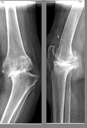 Синдром левосторонней гоналгии коленного сустава что это суставы сгибаются